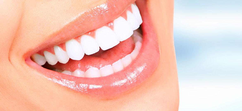 Os 3 Melhores hábitos para conquistar dentes mais brancos